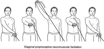 Tom's Physiotherapy Blog: Preventing Rotator Cuff Injuries