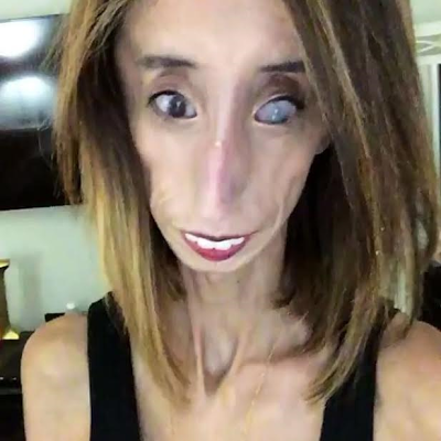 """""""The World's Ugliest Woman"""" Lizzie Velasquez is fighting back in a different way"""