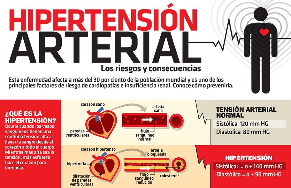 Hipertensión Arterial : Definición de Hipertensión Arterial