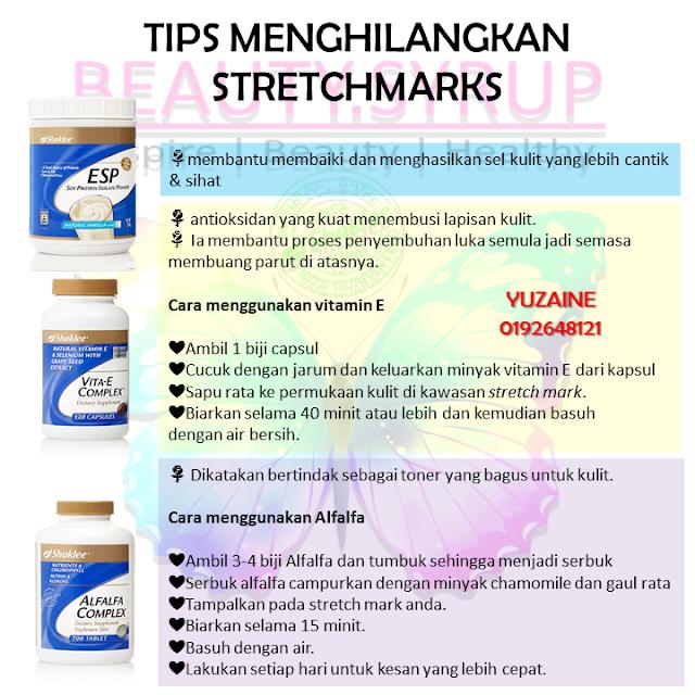 tips hilangkan strecth marks