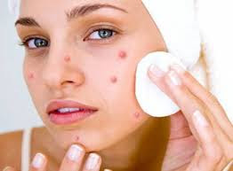 • Ice Ice is often used as a quick remedy to get rid of Pimple overnight. You just need to wrap an ice cube (or crushed ice) in a piece of cloth and apply it on your Pimple for about 20-30 seconds. Repeat this procedure a few times in a day to reduce the swelling of your Zits considerably as it helps to freeze the pores and removes dirt and oil without problems. If you are looking for resolving on how to get rid of a red Pimple fast then this ice remedy will surely give the best results.