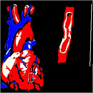 magas vérnyomás 2 fokú kockázat 2 pradaxa magas vérnyomás esetén