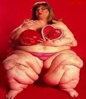 Cewek Obesitas