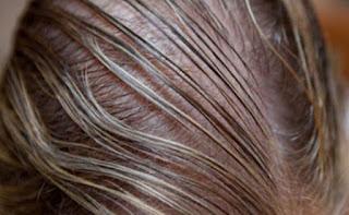 النانو تقنية حديثة مذهلة لعلاج مشاكل الشعر