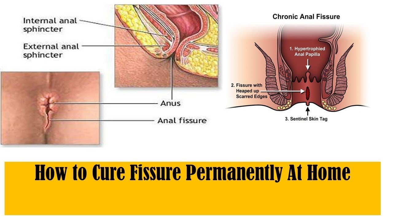 How To Cure Fissure Permanently-5682