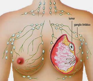 Penyebab, Gejala Awal & Obat Penyakit Kanker Payudara Herbal yang Terbukti Ampuh, Efektif dan Aman