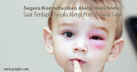 Segera Konsultasikan Alergi Bayi Anda Saat Terdapat Gejala Alergi Protein Susu Sapi