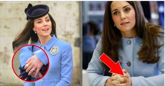 Vous avez déjà remarqué les pansements aux doigts de Kate Middleton ? Voici la triste vérité qu'elle a essayé de cacher !