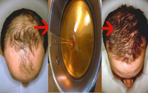Baldness Treatment Recipe : After Two Days Your Hair WILL BEGIN TO GROW