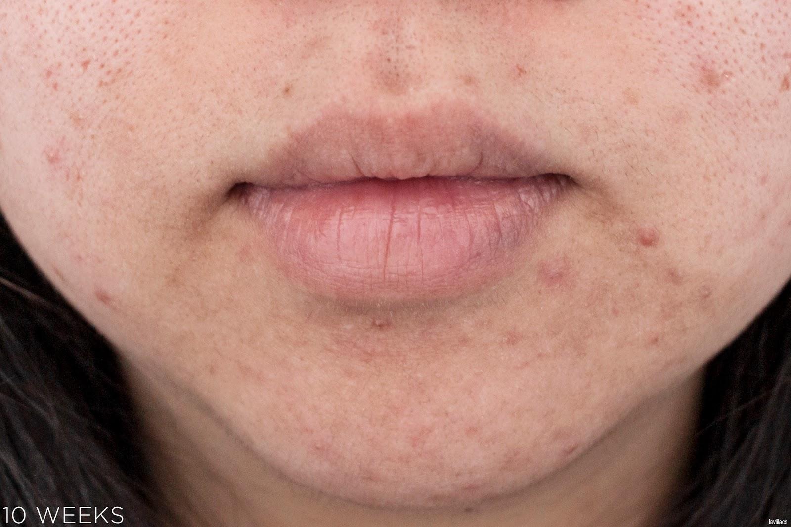 tria Hair Removal Laser Facial Hair 10 Weeks, 2 months Closeup