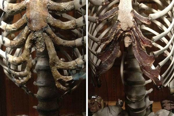 deformação das costelas, corseting, espartilho, corpete