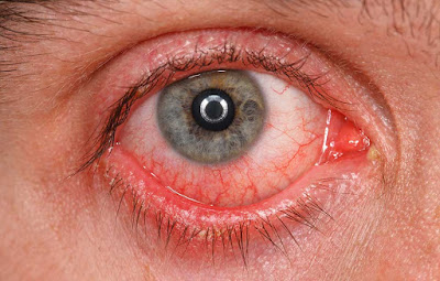 Lacrimal Caruncle - Swollen, Itchy, Infection, Cyst