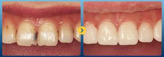 Trám răng thẩm mỹ có bền không
