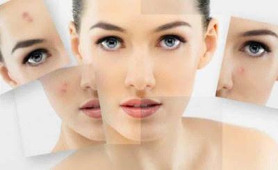 7 Cara Alami Menghilangkan Flek Hitam pada Kulit Wajah