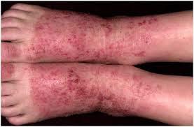 Image Salep obat gatal eksim di area kaki