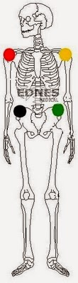 ecg placement électrodes