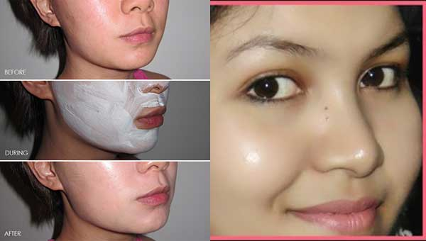 Use This For Few Nights, And Get Spot Free Glowing Skin
