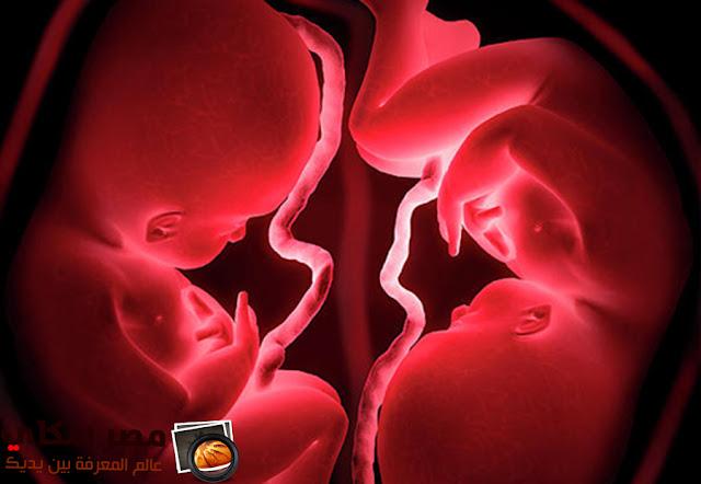 إنجاب التوائم وكيف يحدث procreationTwins