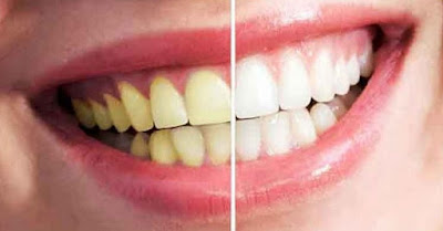 9 Tips Cara Ampuh Memutihkan Gigi Kuning Secara Alami