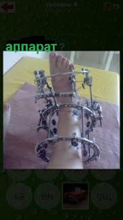 на ноге установлен специальный аппарат