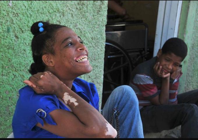 """Van a registrar casos de La enfermedad  """"Ojo del Tigre""""en el Sur"""