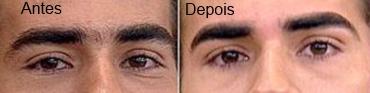 sobrancelhas-masculinas-antes-e-depois