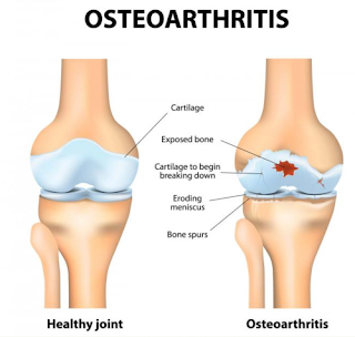 Osteoarthritis treatment in Ayurveda Ernakulam