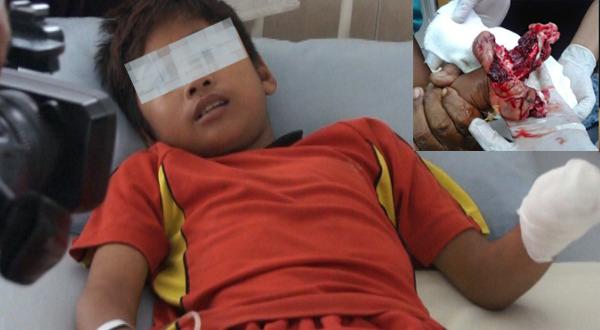 Setelah mendapatkan perawatan medis dari  Rumah Sakit Islam Siti Rahmah, Jalan By Pass KM.15, Air Pacah, Koto Tangah, Padang kini Hendra (7)) siswa kelas satu SD meminta kepada pihak kelopisian untuk tidak menangkap ibu tirinya berinisial MH (37) yang telah menjepitkan tangan nya di pintu besi rumah .  Alasan Hendra, kalau nanti ibu nya di tangkap takut gak ada yang mencuci baju ayah nya .  Hendra (7)) siswa kelas satu SD ini harus kehilangan lengan kirinya karena di jepit oleh ibu tirinya berinisial MH (37) yang baru dinikahi oleh ayah nya setahun lalu.  Peristiwa ini berawal dari Hendra yang meminta uang jajan kepada ibu tirinya sambil menangis dan berkata kepada MH ibu tiri bahwa iya ingin membeli jajan di kedai dekat rumah nya, lalu MH yang gelap mata tersebut pun menarik Hendra dan menjepitkan tangan korban ke pintu besi rumah nya hingga hancur.  Namun untuk mempertanggung jawabkan kekerasan yang di lakukan MH ibu tiri korban ia tetap harus di tahan dan di tindak lanjuti  di kantor Polsek Jalan By Pass , Air Pacah, Koto Tangah, Padang  Kepala Polesek : Setiap orang dilarang menempatkan, membiarkan, melakukan, menyuruh melakukan, atau turut serta melakukan kekerasan terhadap anak. Ancaman sanksi bagi orang yang melanggar larangan ini (bagi pelaku kekerasan/peganiayaan) adalah pidana penjara paling lama 3 (tiga) tahun 6 (enam) bulan dan/atau denda paling banyak Rp72.000.000,00 (tujuh puluh dua juta rupiah). ujar kepala polsek Koto Tangah, Padang .  Untuk saat ini korban masih dirawat di Rumah Sakit Islam Siti Rahmah, Jalan By Pass KM.15, Air Pacah, Koto Tangah, Padang, Sumatera Barat untuk mendapatkan perawatan medis lebih lanjut . Rita andini melaporkan langsung ke tribunkota Minggu 28/8/2016 pagi tadi .