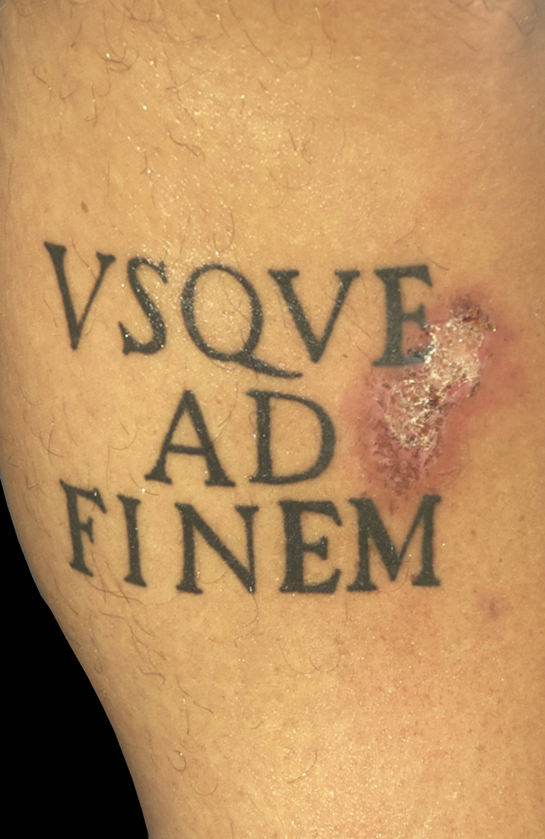 Ad Finem