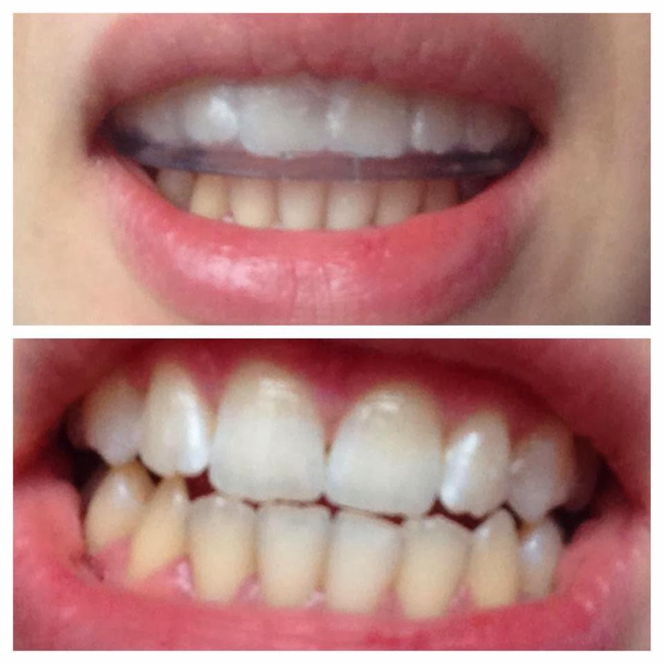 to her livelaughlove WHITE PRO Zähne günstig zu Hause
