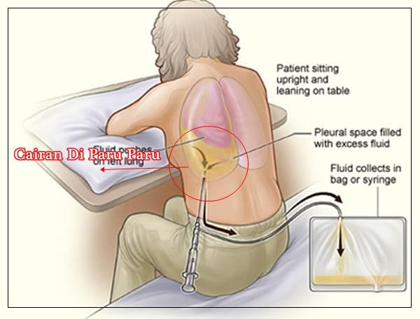Obat Untuk Penyakit Paru Paru Yang Terendam Air