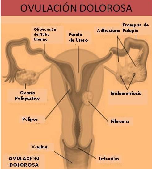 el gas puede causar dolor pélvico durante la ovulación