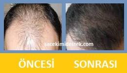 saç mezoterapisi öncesi ve sonrası 17