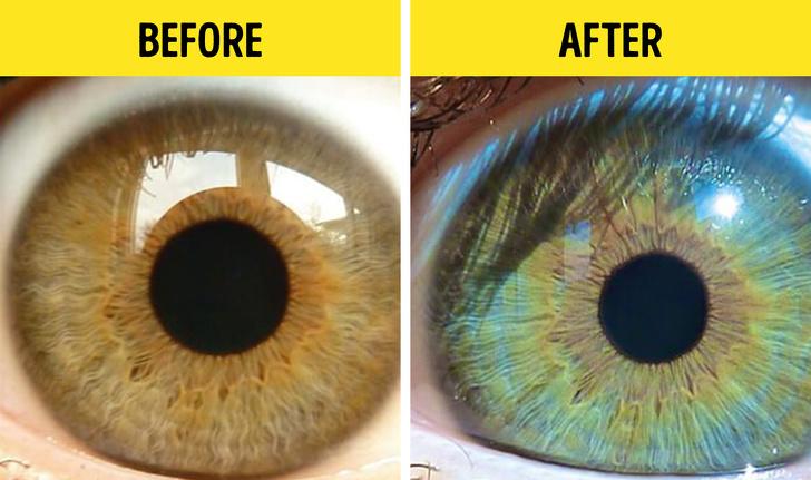 الحمية الغذائية الخام والتخلص من السموم - 7 أشياء يمكن أن تغير لون عينيك - عينان