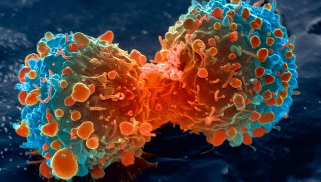 See how cancer cells forming tumors