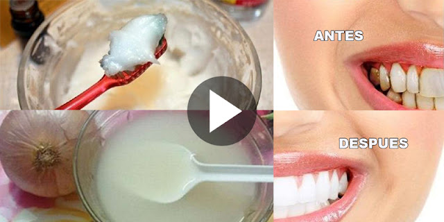 This Mixture Whitens Your Teeth, Eliminates Bad Brath, Tartar And Plaque