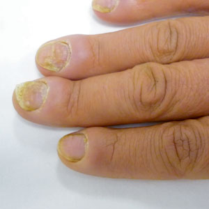 mycose-ongles