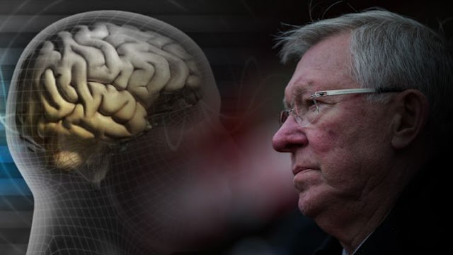 Sir Alex Ferguson rawat inap setelah menjalani operasi pendarahan otak pekan lalu