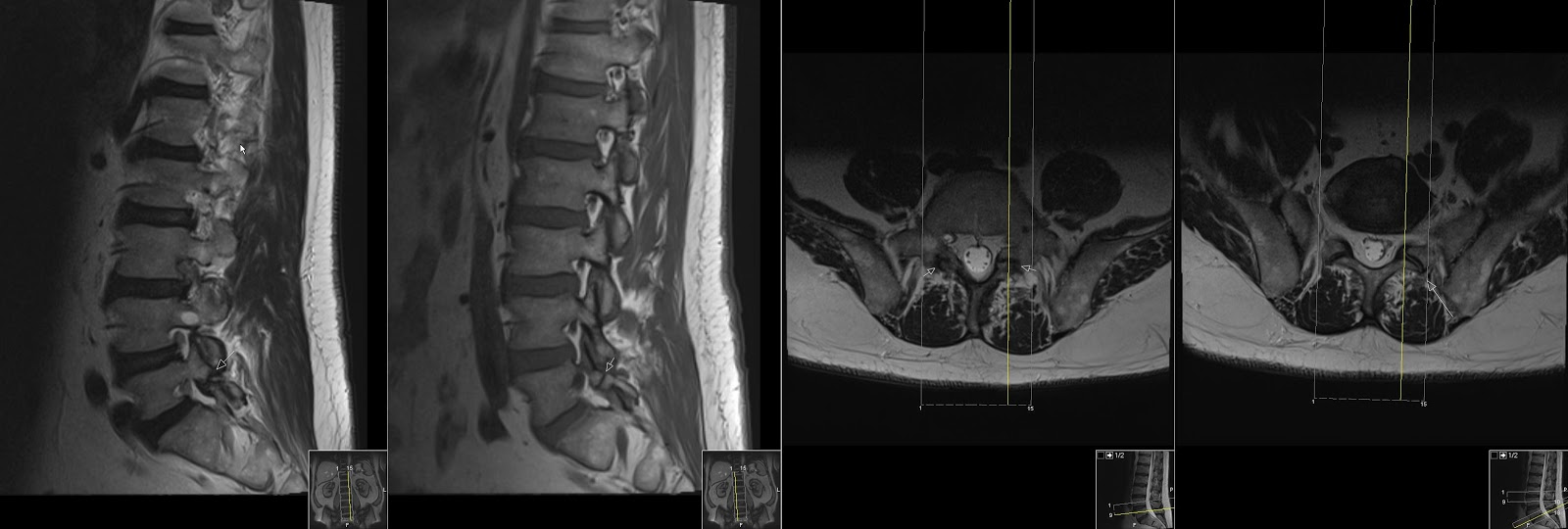 Radiology thesis on mri