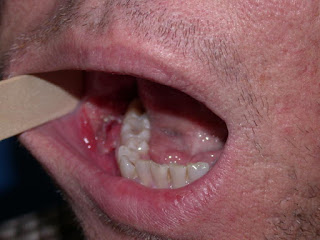 Mouth cancer pictures from chewing tobacco