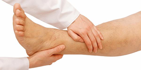 Penyakit Asam Urat dan Cara Pengobatannya