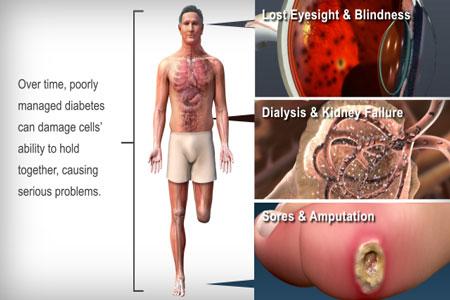 Gejala Penyakit Diabetes Melitus