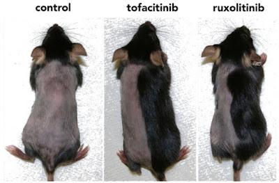 alopecia areata. Tratamiento con tofacitinib y ruxolitinib