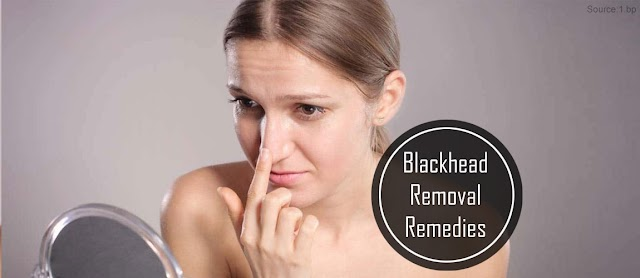 10 Tried And Tested Remedies For Removing Blackheads