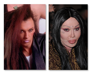 Pete Burns Before And After Plastic Surgery