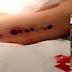 Bahana Perancang Implant, Doktor Terpaksa Mengorek Lengan Wanita Ini Hampir Dua Jam Untuk Mengeluarkannya