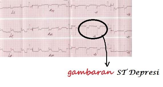 Cara Mudah Membedakan Stemi Nstemi dan UAP  Jantung Area