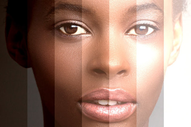 Five things everyone should know about skin bleaching