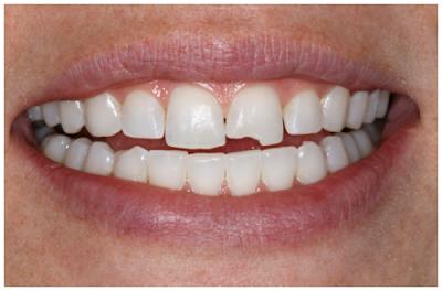 Răng bị mẻ sẽ ảnh hưởng đến tính thẩm mỹ