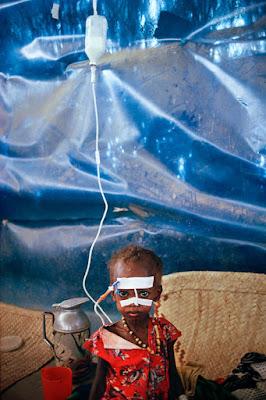 Dziewczynka w szpitalu w Somalii 1992